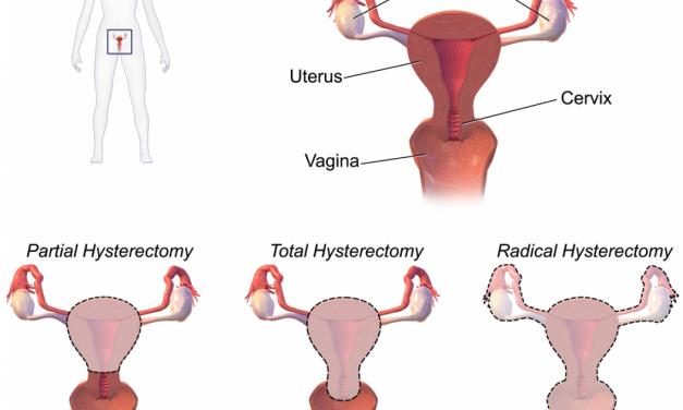 Hystérectomie : risque accru de cancer du rein chez la femme