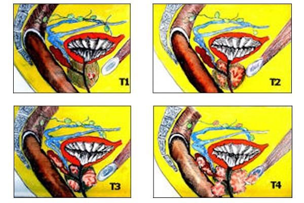 Cancer de la Prostate : le Bilan