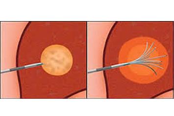Traitement par radiofréquences des cancers du rein.