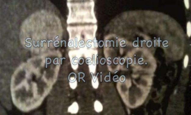 Surrénalectomie droite par coelioscopie
