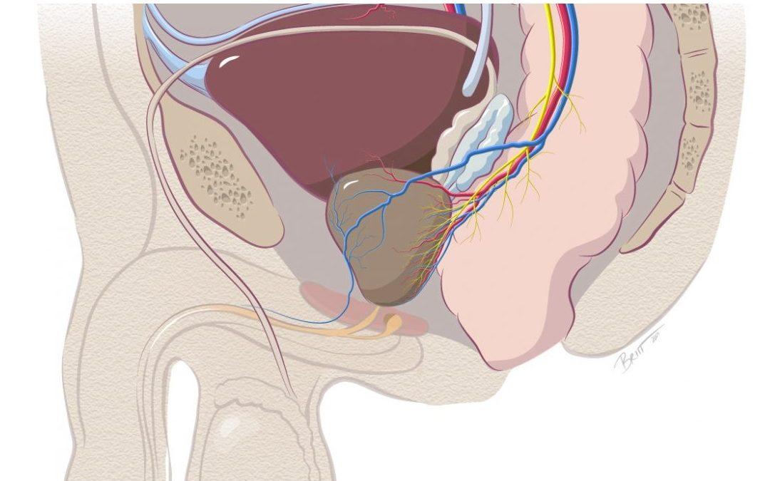 Glossaire médical du cancer de la prostate