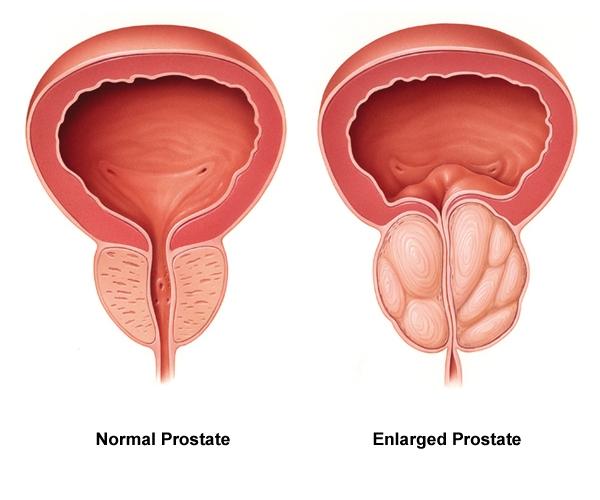 adenome de la prostate
