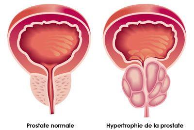 Adénome de la prostate et troubles sexuels