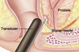 Intérêt des biopsies dans le diagnostic du cancer de la prostate