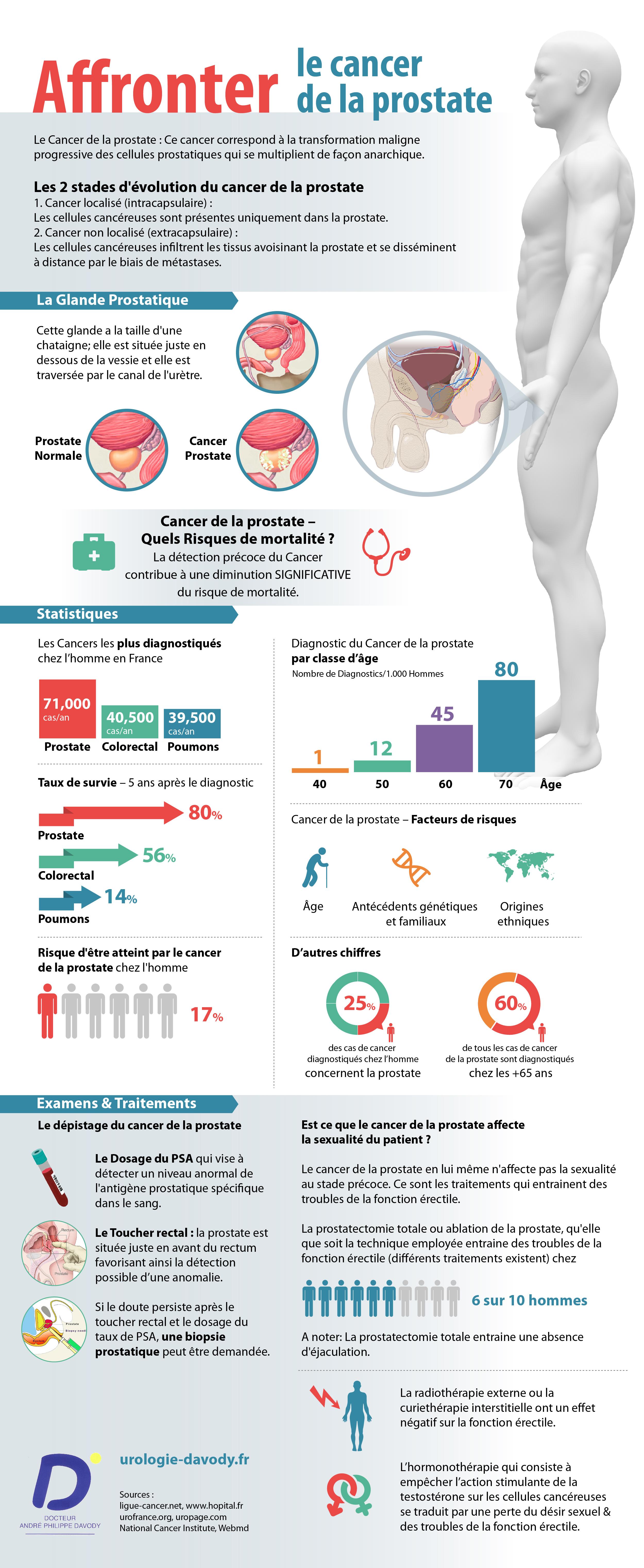 Infographie sur le cancer de la prostate