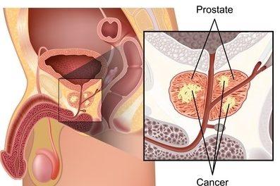 Qu'est ce que la Prostate