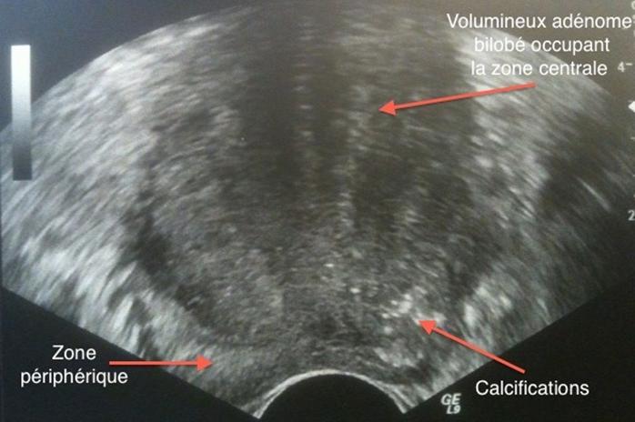 L'échographie dans le bilan de l'hyperplasie bénigne de la prostate (adénome)