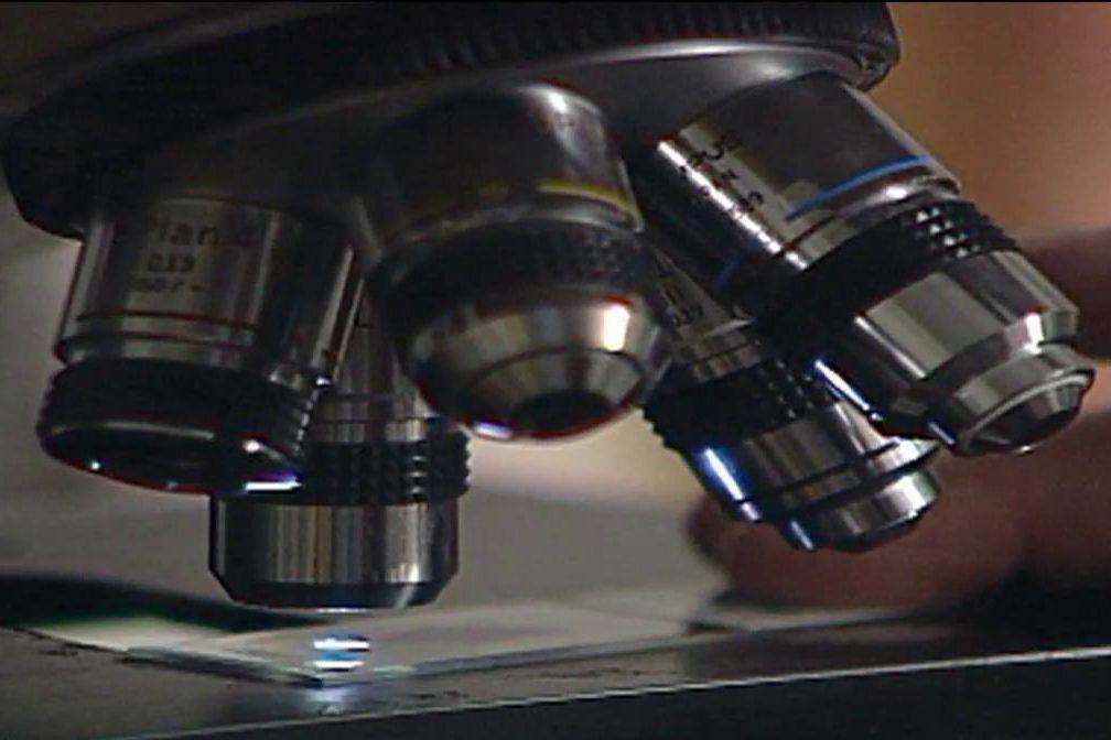 Dépistage individualisé du cancer de la prostate