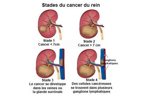 Les traitements des métastases du cancer du rein