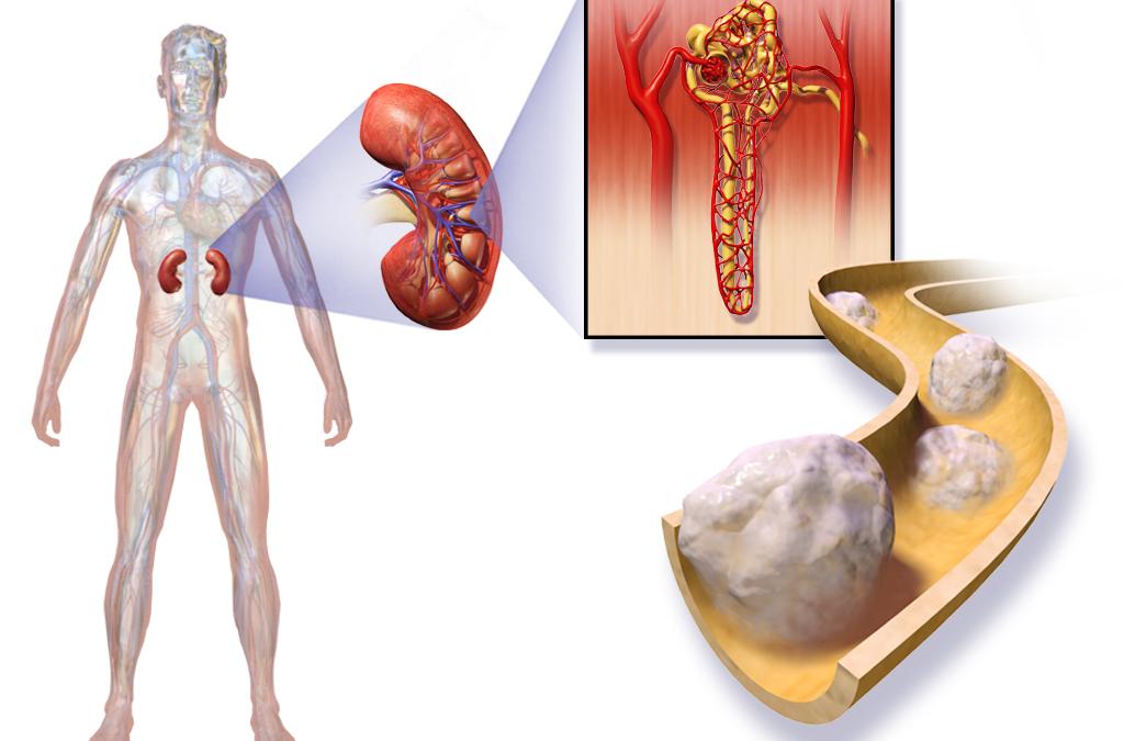 Cancer du rein : risques de récidive