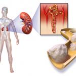 Cancer du Rein héréditaires et Cancer du Rein chez les insuffisants rénaux
