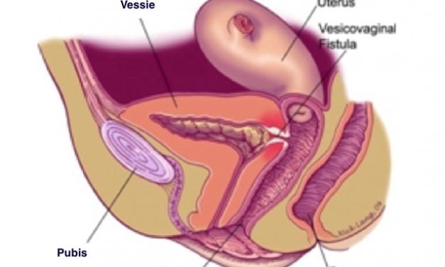 Syndrome de la jonction pyélo-urétérale: Opération sous coelioscopie assistée par le Robot DA VINCI et autres chirurgies reconstructrices de l'appareil urinaire