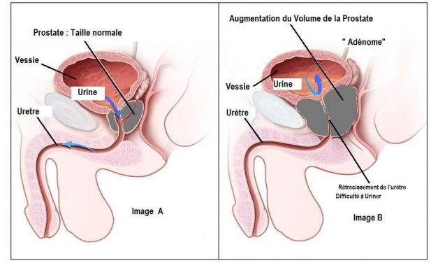Les traitements médicamenteux de l'adénome de la prostate