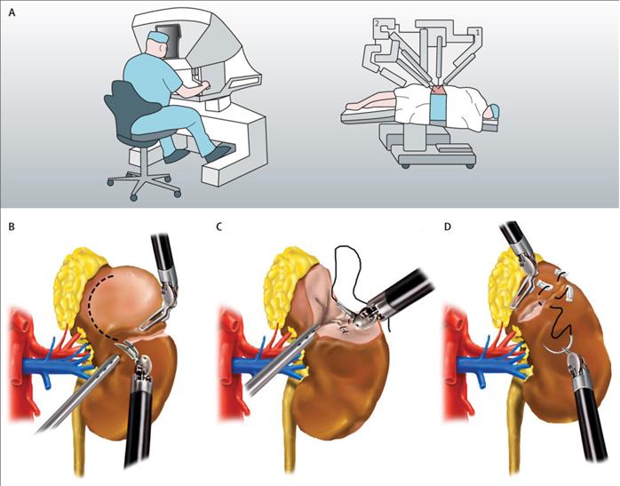 Néphrectomies par coelioscopie assistée du robot Da Vinci