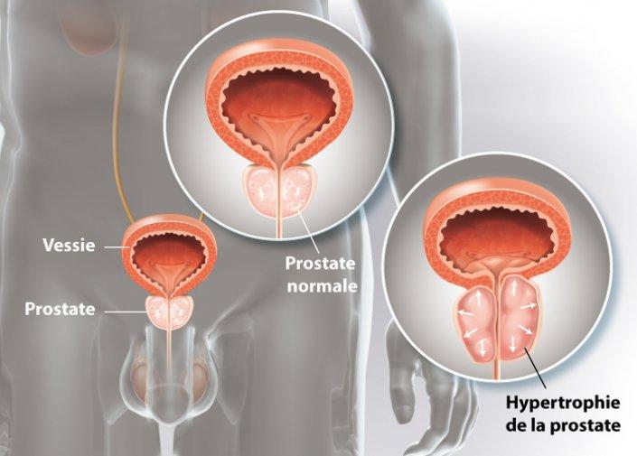 L'examen urologique d'un homme consultant pour un adénome de la prostate
