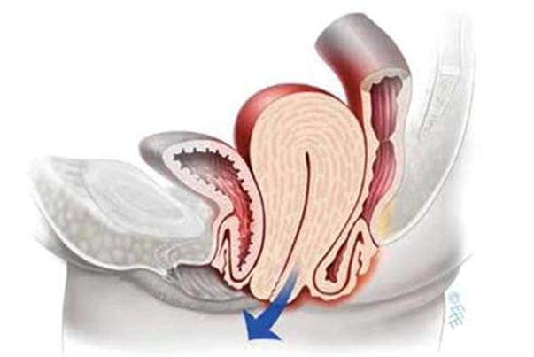Symptômes d'alerte du prolapsus génital