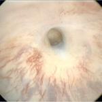 Urétroplastie pour sténose de l'urètre bulbaire avec lambeau libre de muqueuse buccale