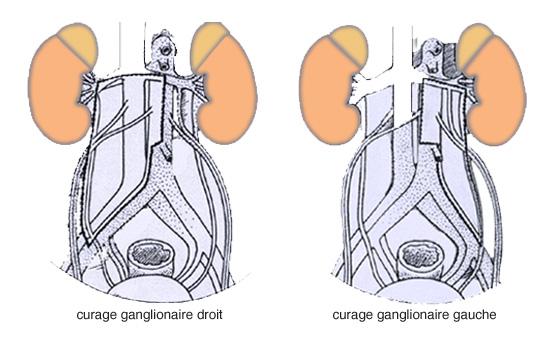 La place du curage ganglionnaire dans le traitement du cancer du rein