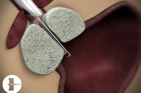 Les variantes à la résection transurétrale classique de la prostate utilisant l'énergie électrique