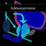 Chirurgie par Laser de l'hypertrophie bénigne de la prostate