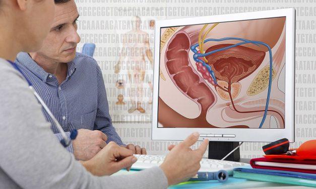 Qu'est-ce que le cancer de la prostate