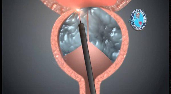 HoLEP : énucléation au laser HOLMIUM de l'adénome de prostate – Le principe du traitement