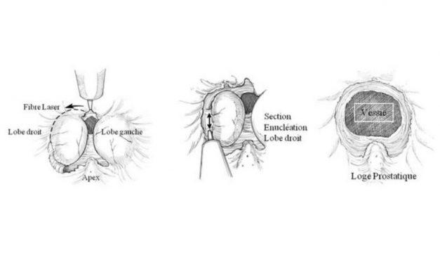 HoLEP : La réalisation de l'énucléation au laser HOLMIUM de l'adénome de prostate