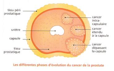 Tumeurs de la prostate : les cancers agressifs de haut grade sont plus fréquents chez les diabétiques sous traitement.