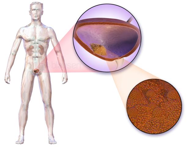 Histoire naturelle du cancer de la vessie