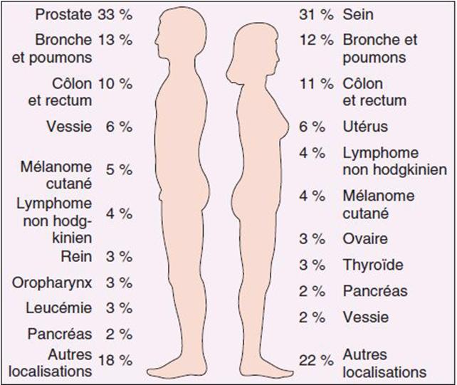 Statistiques concernant le cancer de la vessie