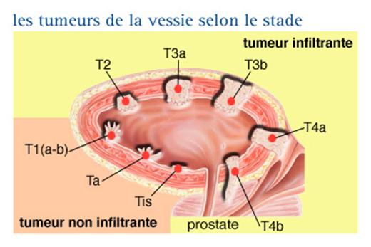 Stadification du Cancer de la Vessie