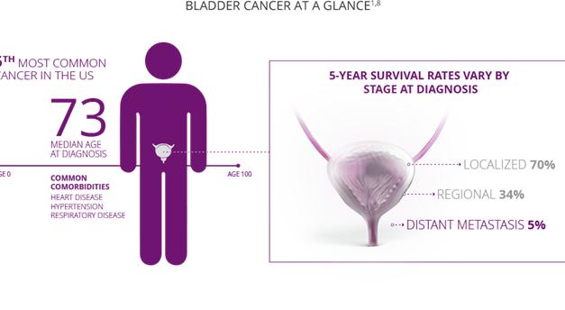 Les Taux de Survie du Cancer de la Vessie