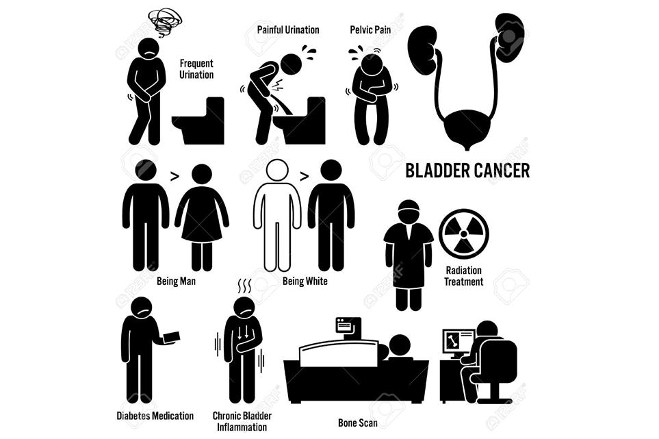 Signes et Symptômes du Cancer de la Vessie