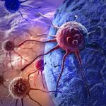 Le traitement des cancers évolués de la vessie