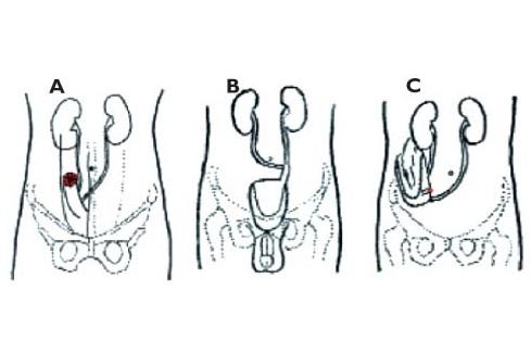 La chirurgie reconstructrice après la cystectomie radicale