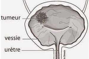 Complications, Risques et Séquelles de la cystectomie