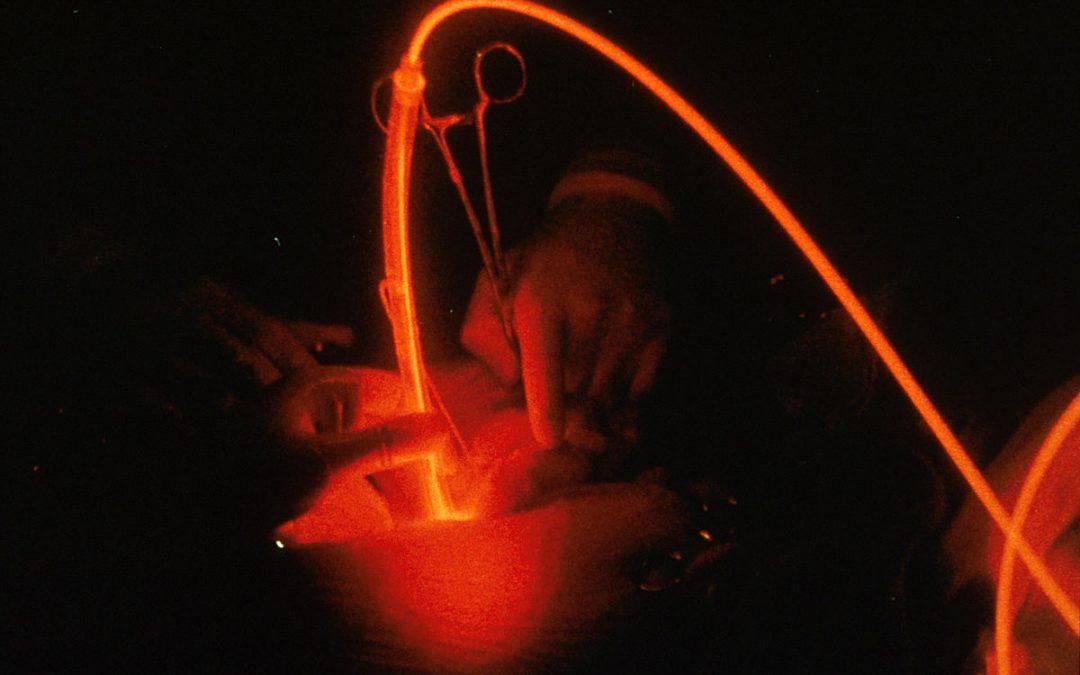 Nouvel espoir pour les cancer de la prostate à bas risque avec la thérapie photodynamique à visée vasculaire