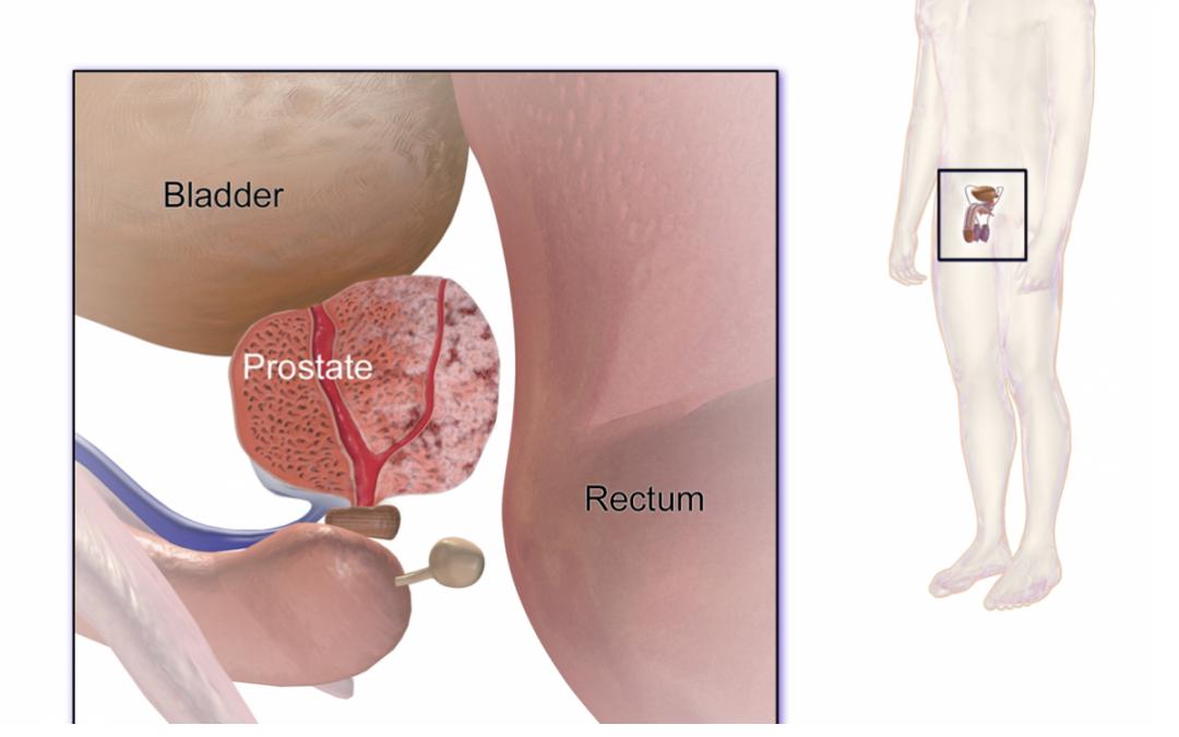 Une étude de référence montre qu'il n'existe aucun lien entre la vasectomie et le cancer de la prostate.