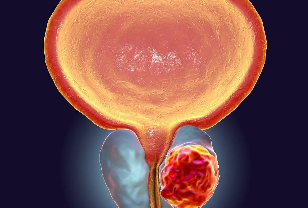 Cancer de prostate : un traitement ciblé pourrait ralentir la propagation des tumeurs