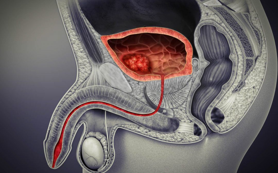 Le traitement du cancer de l'urètre