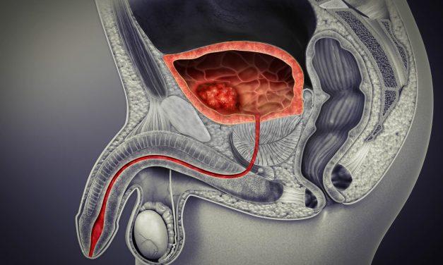 Cancer de la vessie : un meilleur pronostic des formes avancées grâce à l'immunothérapie
