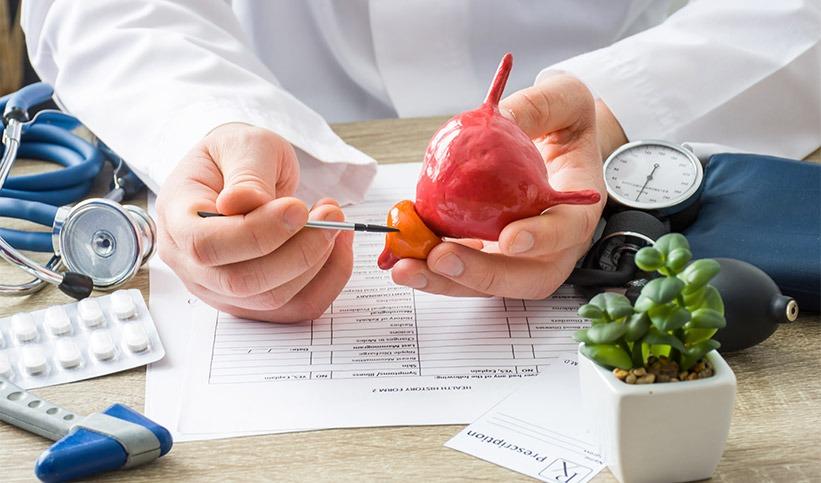 Une nouvelle stratégie de traitement contre le cancer de la prostate résistant aux médicaments