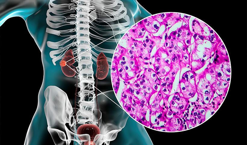 Une triple thérapie identifiée pour le traitement du cancer du rein